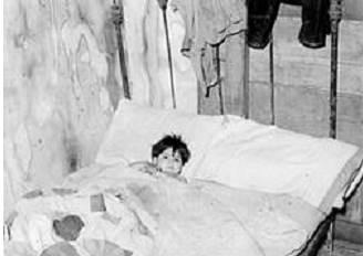 شکل3. پسر بیمار مکزیکی در تخت خواب.